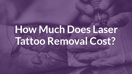 How Much Does Laser Tattoo Removal Cost?