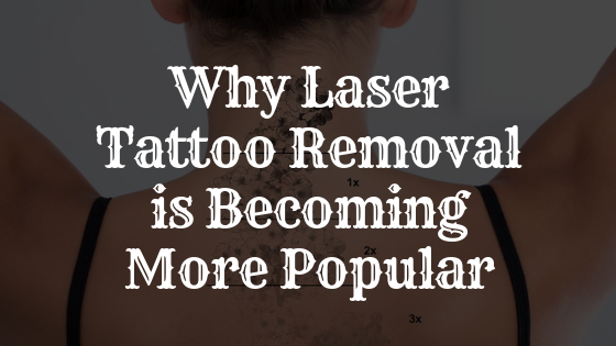 Why Laser Tattoo Removal is Becoming More Popular